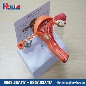 Mô hình tử cung buồng trứng âm đạo bệnh lý