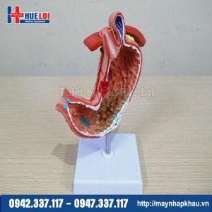 Mô hình các bệnh lý dạ dày