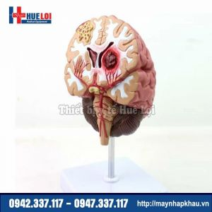 Mô hình bệnh lý não hay gặp