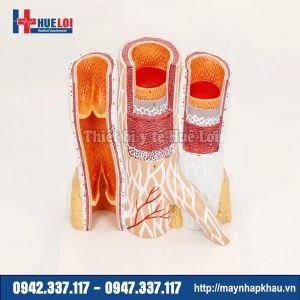 Mô hình cấu tạo thành mạch