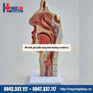 Mô hình giải phẫu họng bình thường và bệnh lý