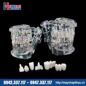 Mô hình răng bình thường và bệnh lý