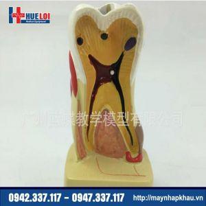 Mô hình răng bệnh lý