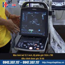 Máy siêu âm xách tay Mindray DP 30
